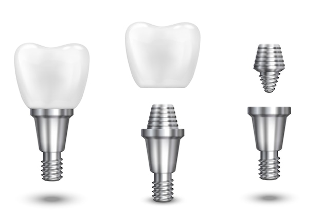 Zahnimplantat. implantieren sie zahn- und gesundheitszahn, gesundes implantat, vektorillustration