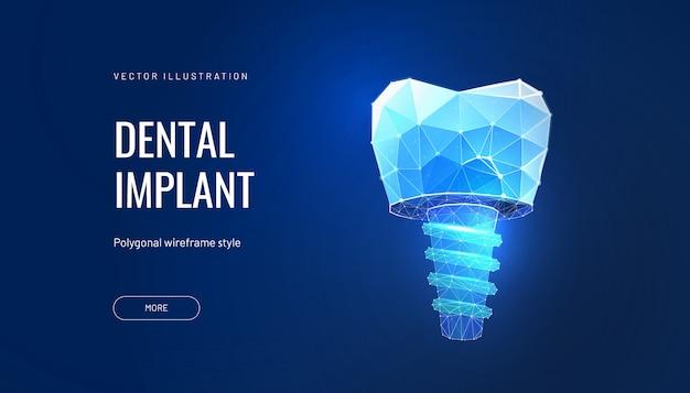 Zahnimplantat mit digitalen technologien in der zahnmedizin