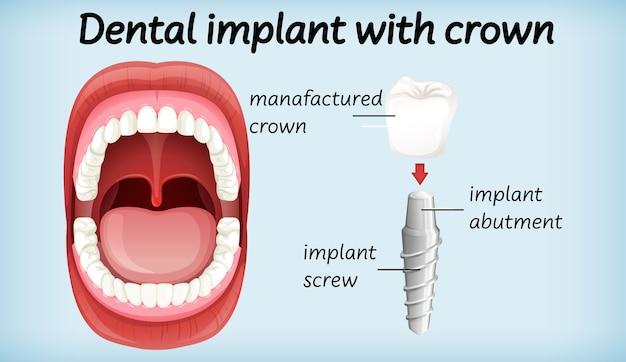 Zahnimplantat mit krone