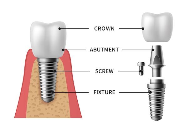 Zahnimplantat. realistische implantatstruktur bildliche modelle der krone. abutment, schraubenprothese kieferorthopädische implantationszähne. stomatologie-klinik-konzept-vektor-set