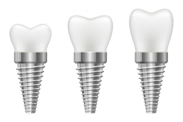 Zahnimplantatillustration lokalisiert auf weißem hintergrund