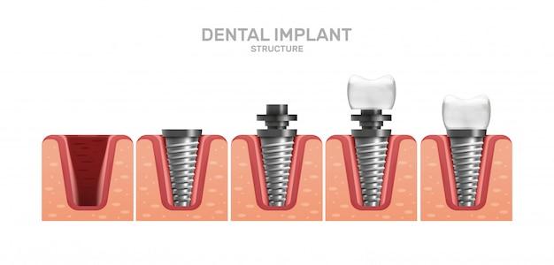 Zahnimplantatstruktur und vollständige platzierungsschritte in realistischem stil.