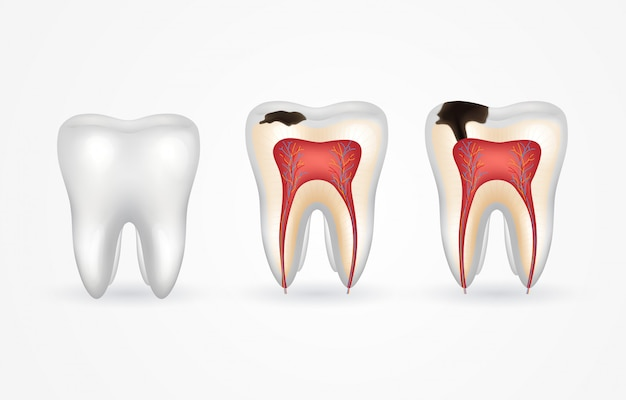 Zahnkaries und gesunder zahn. oberflächliche karies; tiefe karies, schmelz- und dentinverfall, parodontitis. 3d realistischer zahn innen und außen.