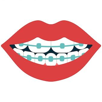 Zahnmedizinische klammerkarikatur lokalisiert auf weiß