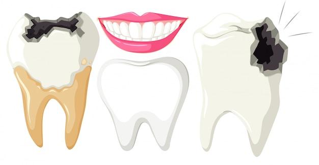 Zahnverfall auf weißem hintergrund