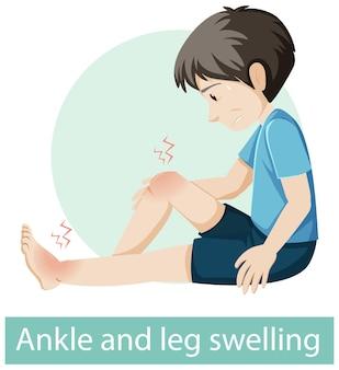 Zeichentrickfigur mit schwellungssymptomen von knöchel und bein