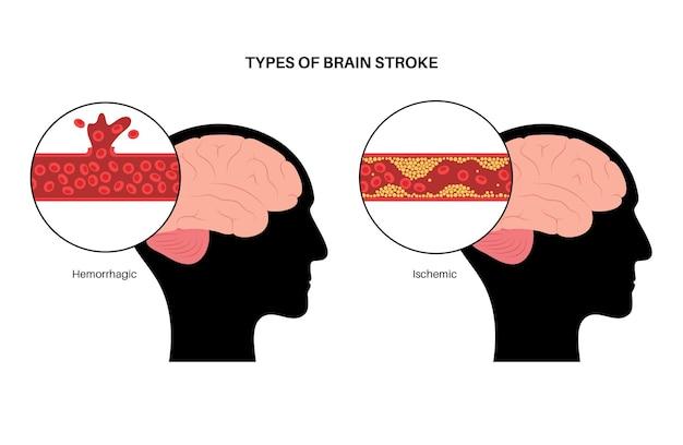 Acidente vascular cerebral isêmico e hemorrágico