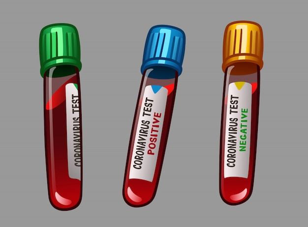 Ampolas com testes para vírus