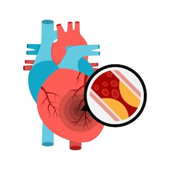 Anatomia do coração humano com ataque cardíaco placa aterosclerótica nos vasos sanguíneos