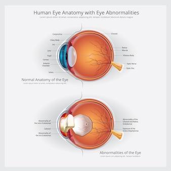 Anatomia do olho com ilustração vetorial de anormalidades do olho