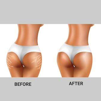 Antes e depois das estrias nas nádegas das mulheres