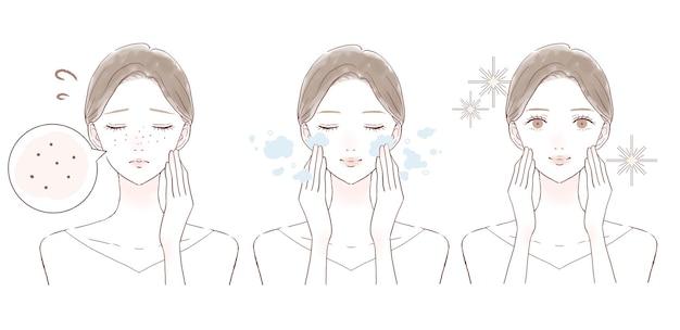 Antes e depois de mulheres que sofrem de escurecimento dos poros. sobre fundo branco.