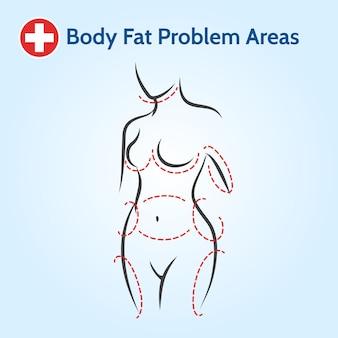 Áreas com problemas de gordura corporal feminina