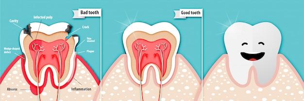Arte de papel de ciência de saúde sobre um dente ruim e um dente bom
