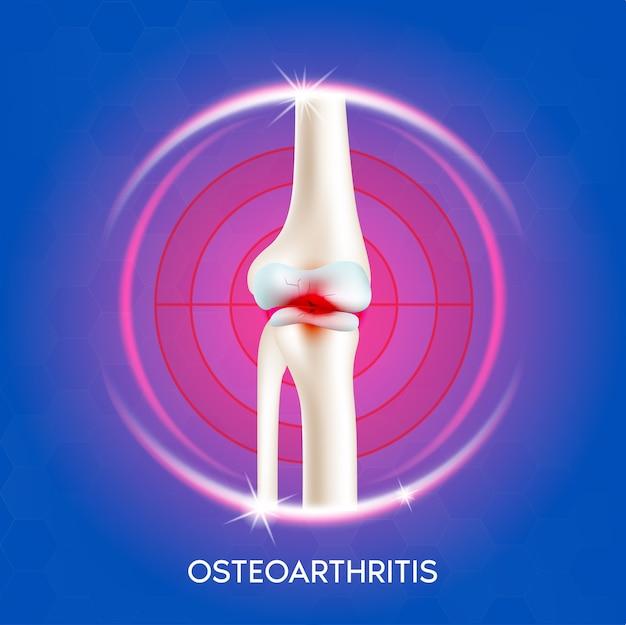 Articulação do joelho com artrite. dor na perna. anatomia óssea humana.