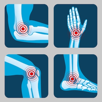 Articulações humanas com anéis de dor. infográfico de artrite e reumatismo. botões de vetor de app médico