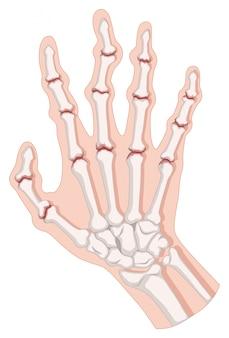 Artrite reumatóide em mão humana