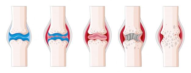 Artrite reumatóide na ilustração do corpo humano