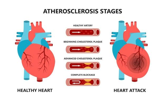 Ataque cardíaco e fases da aterosclerose colesterol nos vasos sanguíneos