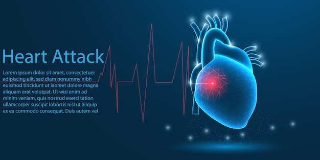 Ataque cardíaco humano, conceito low poly.