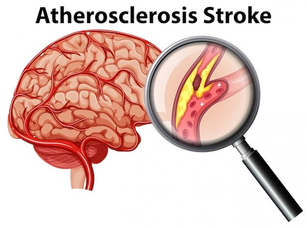 Aterosclerose avc no fundo branco