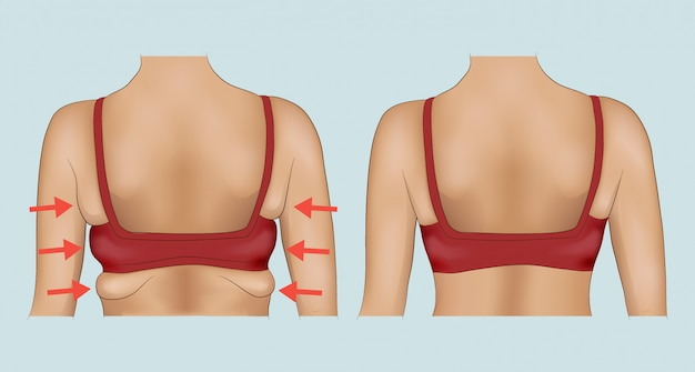 Axilas antes e depois da dieta ou cirurgia