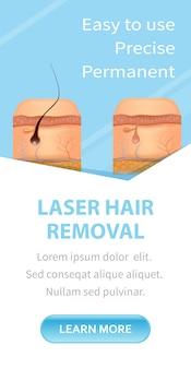 Banner vertical de remoção de pêlos a laser antes depois