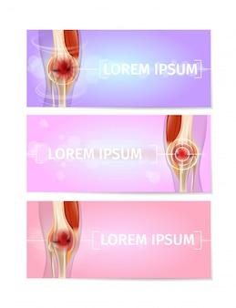 Banners da web médica com conjunto de vetores de articulações do joelho