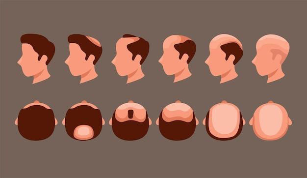 Cabeça de homem com problema de queda de cabelo na vista lateral e superior do conjunto de símbolos.
