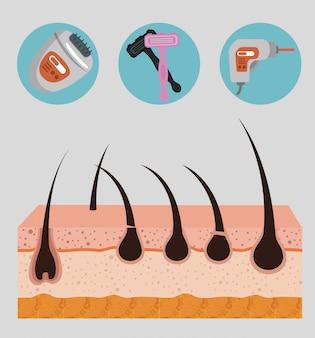Camadas da estrutura da pele com elementos de depilação