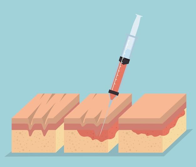 Camadas de pele com injeção de botox