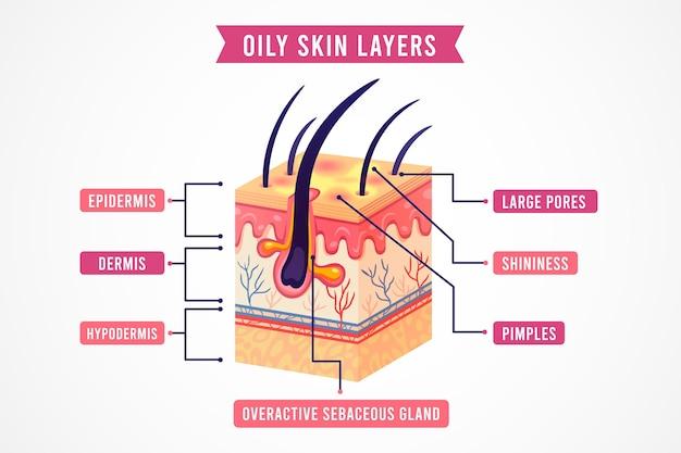 Camadas realistas de pele oleosa