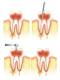 Canal radicular dentário