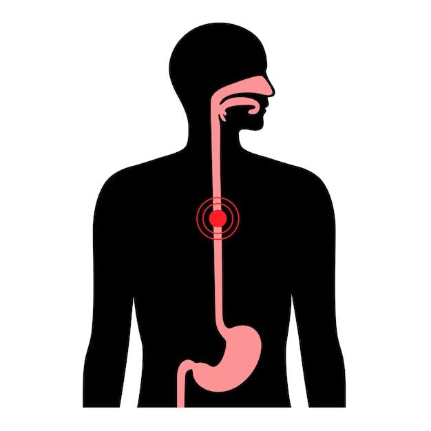 Carcinoma esofágico. anatomia do esôfago e estômago no corpo masculino.