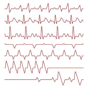 Cardiogramas de linha ou eletrocardiograma no monitor