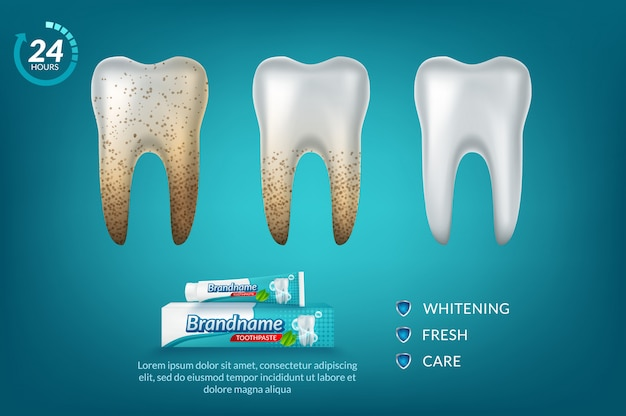 Cartaz de anúncio de creme dental branqueador.