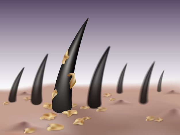 Caspa no cabelo e couro cabeludo causando germes e bolhas ou espinhas na cabeça.