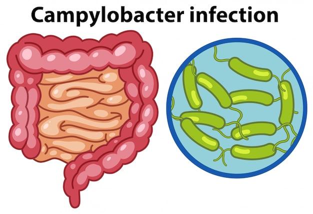 Células ampliadas de infecção por campylobacteri