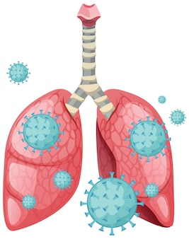 Células de coronavírus em todos os pulmões humanos
