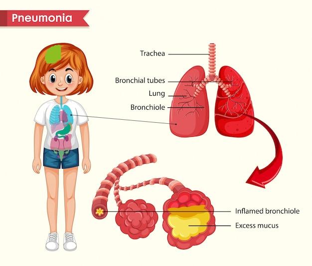 Científico médico, conceito de pneumonia