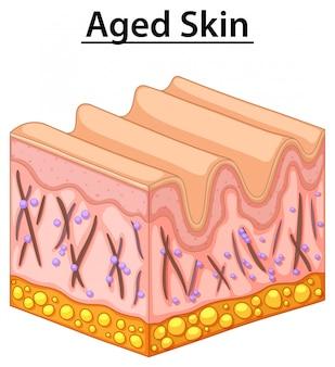 Cima, diagrama, de, envelhecido, pele