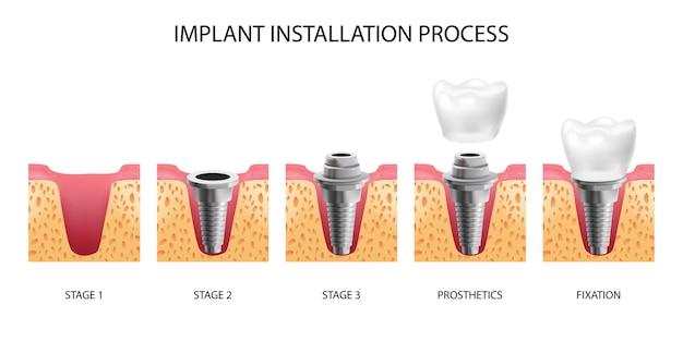Cinco estágios de instalação de implante dentário isolado realista