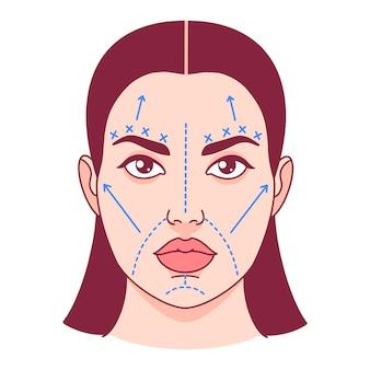 Cirurgia plástica, linhas de corte em um rosto feminino. ilustração vetorial