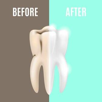 Clareamento dentário profissional antes e depois estomatologia para cuidados de saúde bucal. ilustração vetorial