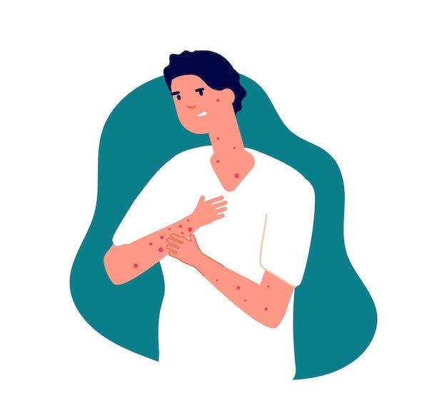Coçar a pele. homem doente, alergia sazonal ou sintomas de roséola. doença de vírus, sarna ou ilustração vetorial de varicela adulta. homem de pele doente, coceira de doença, erupção cutânea coceira