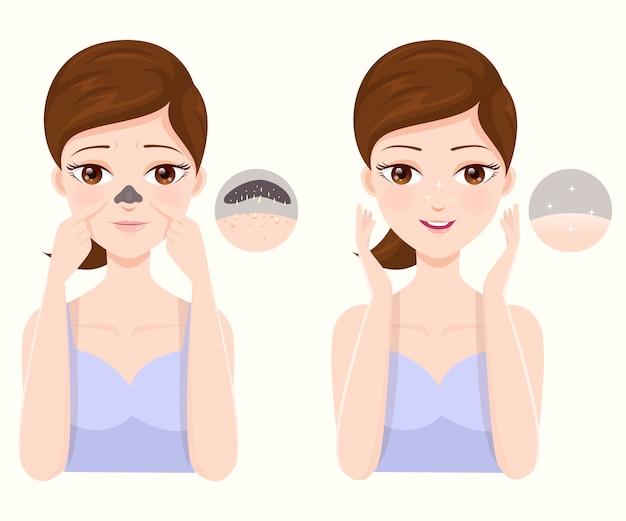 Como tratar o nariz entupido de acne
