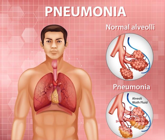 Comparação de alvéolos saudáveis e pneumonia