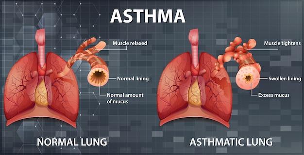 Comparação de pulmão saudável e pulmão asmático
