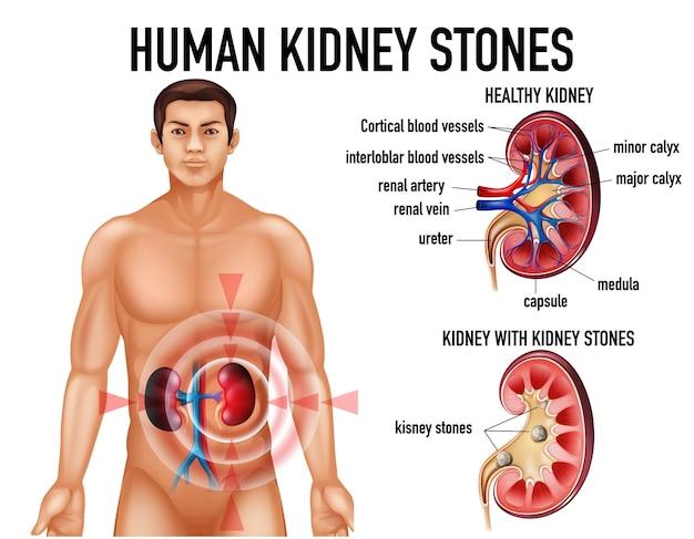 Comparação de rim e rim saudáveis com pedras