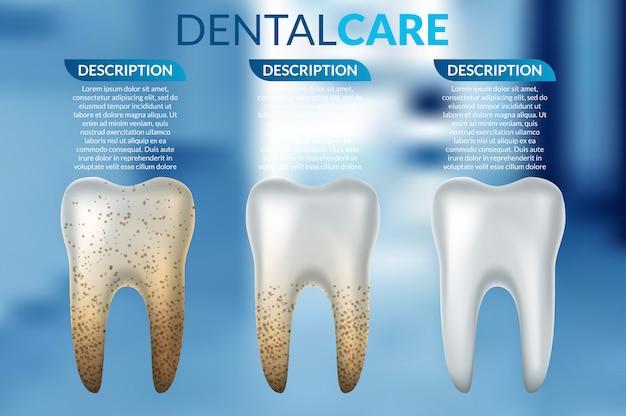 Comparação do dente limpo e sujo antes e depois do tratamento de clareamento.